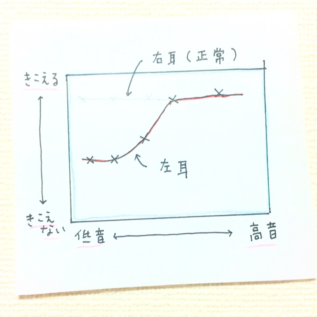 難聴診断結果のグラフ