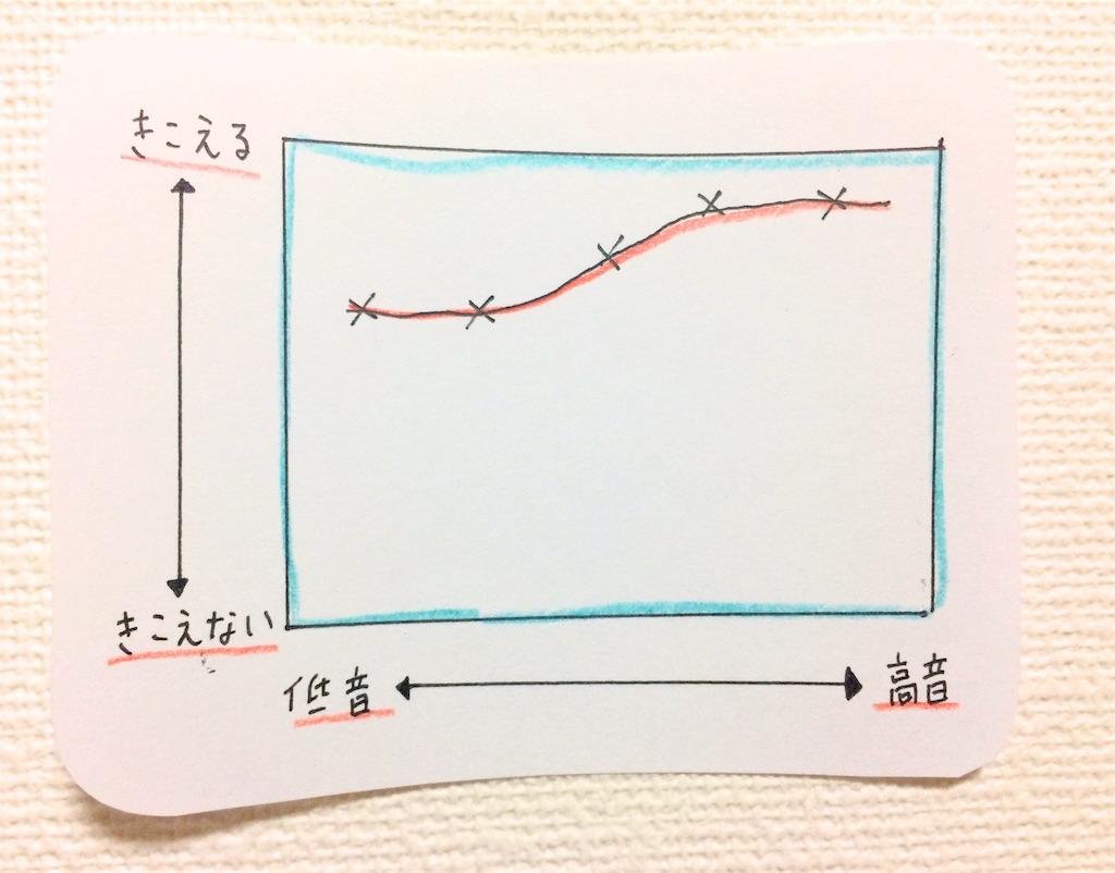 聴力検査結果グラフ